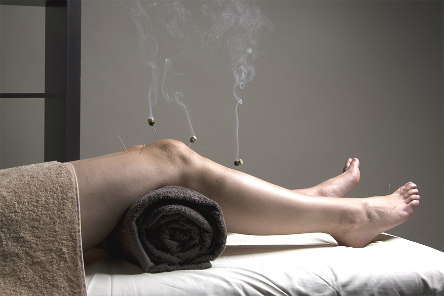 Indirect moxibustion using the warm needle technique